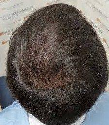 implantacion del cabello derecha