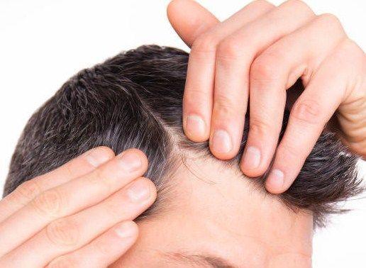 implantacion del cabello hombre