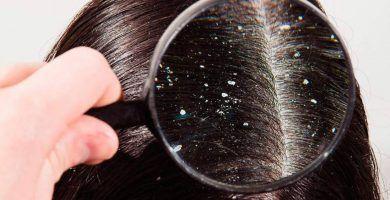 la caspa en el cabello
